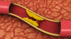 какие продукты снижают вредный холестерин в крови